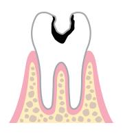 象牙質齲蝕