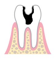 歯髄まで達する齲蝕